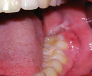 Extractions & Wisdom Teeth | Northmed Dental | Northcote, Auckland